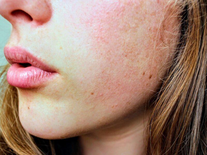 piel-sensible-tratamiento